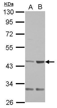 QTRT1 Antibody (PA5-31270) in Western Blot