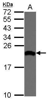 eIF1AX Antibody (PA5-31275)