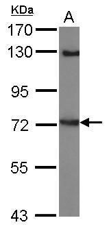 LINGO1 Antibody (PA5-31282) in Western Blot
