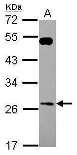 RAB26 Antibody (PA5-31287)