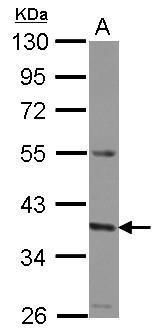 GNA11 Antibody (PA5-31289) in Western Blot