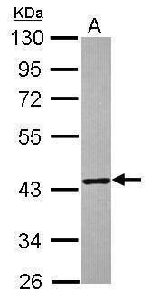 TXNL2 Antibody (PA5-31294)