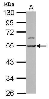 LSM11 Antibody (PA5-31324) in Western Blot