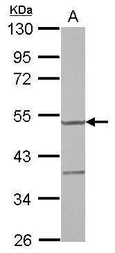 YARS2 Antibody (PA5-31325) in Western Blot