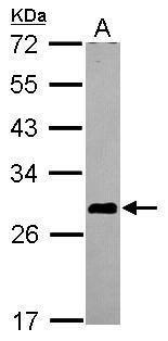 ASB7 Antibody (PA5-31329) in Western Blot