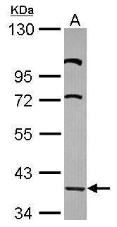 LDB2 Antibody (PA5-31346) in Western Blot