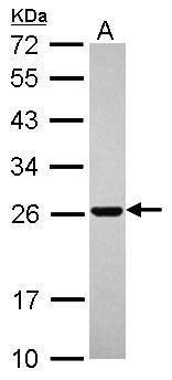 RAB11B Antibody (PA5-31348) in Western Blot