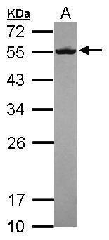 Septin-8 Antibody (PA5-31356) in Western Blot