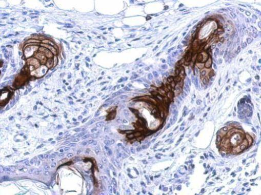 WDR19 Antibody (PA5-31388) in Immunohistochemistry (Paraffin)