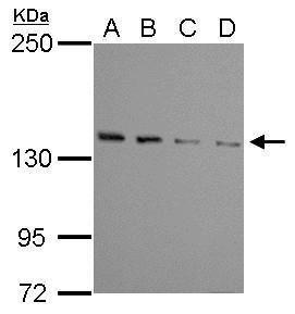 WDR19 Antibody (PA5-31388) in Western Blot