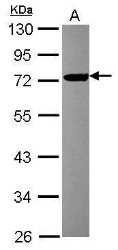 FBXL17 Antibody (PA5-31395) in Western Blot