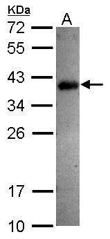 SPRY4 Antibody (PA5-31401) in Western Blot