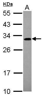 ADHFE1 Antibody (PA5-31416) in Western Blot