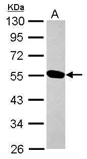 UBE2O Antibody (PA5-31429) in Western Blot