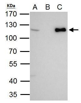 CHD1L Antibody (PA5-31440) in Immunoprecipitation