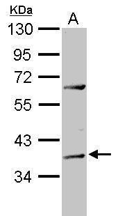 ADAT1 Antibody (PA5-31451)