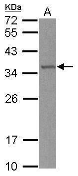 TRMT61A Antibody (PA5-31452)