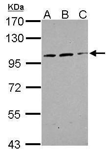TRAK2 Antibody (PA5-31459) in Western Blot