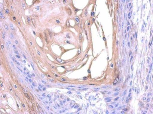 SNX18 Antibody (PA5-31460) in Immunohistochemistry (Paraffin)