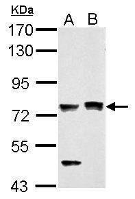 PASD1 Antibody (PA5-31463) in Western Blot