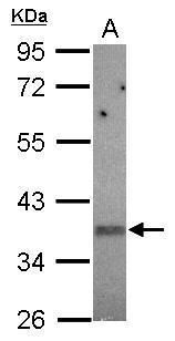 KIR2DS2 Antibody (PA5-31465) in Western Blot