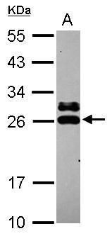 GSTK1 Antibody (PA5-31470) in Western Blot