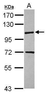KIF18A Antibody (PA5-31477) in Western Blot