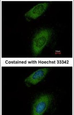 Annexin A8 Antibody (PA5-31479) in Immunofluorescence