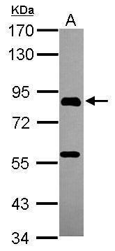 PGBD1 Antibody (PA5-31490) in Western Blot