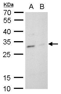 TPPP Antibody (PA5-31492) in Western Blot