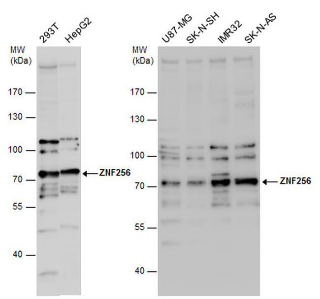 ZNF256 Antibody (PA5-31494) in Western Blot