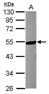 KATNA1 Antibody (PA5-31497) in Western Blot