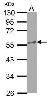 KATNA1 Antibody (PA5-31498) in Western Blot
