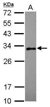 RAB20 Antibody (PA5-31500) in Western Blot