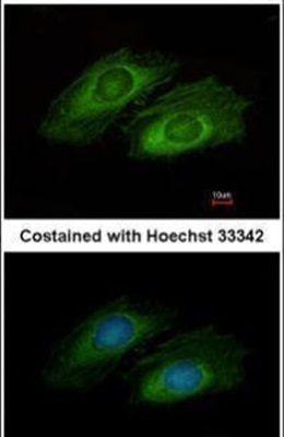 OSBPL10 Antibody (PA5-31511) in Immunofluorescence