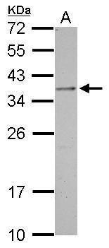 OTP Antibody (PA5-31513) in Western Blot