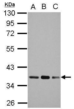 PDHB Antibody (PA5-31519) in Western Blot