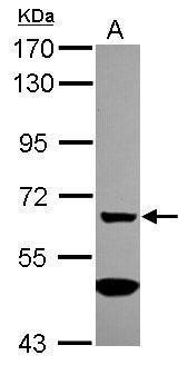 MGAT4A Antibody (PA5-31524) in Western Blot