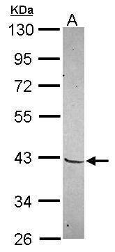 MKX Antibody (PA5-31535) in Western Blot