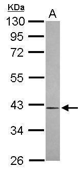 OGFOD1 Antibody (PA5-31548)