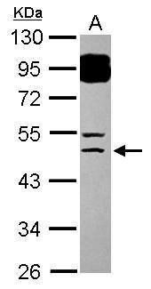 BTBD6 Antibody (PA5-31549) in Western Blot