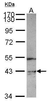 PIP4K2C Antibody (PA5-31550) in Western Blot
