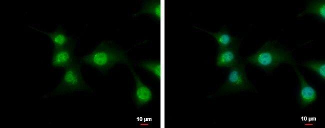 C9orf72 Antibody (PA5-31565)