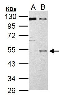 C9orf72 Antibody (PA5-31565) in Western Blot