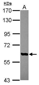 AGBL4 Antibody (PA5-31572) in Western Blot