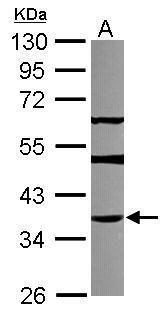 THAP11 Antibody (PA5-31574) in Western Blot