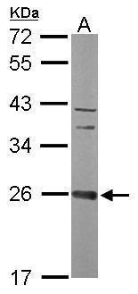 CCDC90B Antibody (PA5-31579) in Western Blot