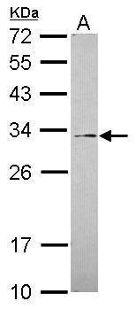 GALNT12 Antibody (PA5-31582) in Western Blot