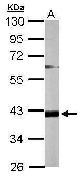 FAM46D Antibody (PA5-31591) in Western Blot