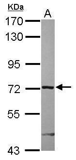 ARHGAP9 Antibody (PA5-31592) in Western Blot
